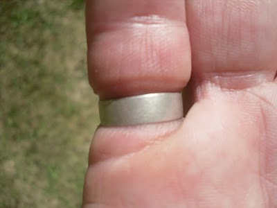 Too Small Ring Denting A Finger Remove