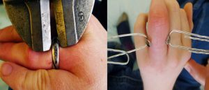 Giant Bolt Cutters Used to Remove Titanium Wedding Band