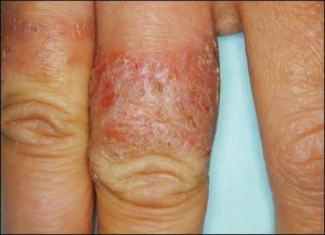 Wedding Ring Rash If You Have Nickel Allergy Then The Allergic Reaction Contact