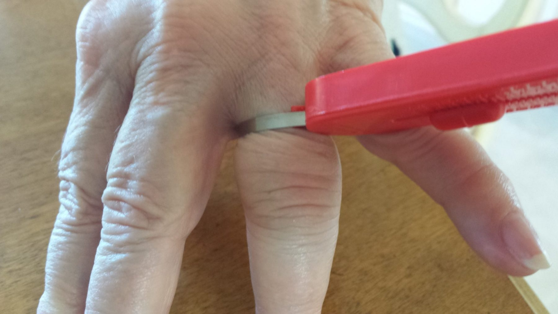 This Client Has a Three Size Knuckle to Finger Differential as Figured Out With my FingerMate Flexible Sizer
