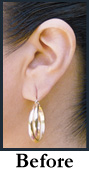 Hoop earring tugging on a torn earlobe. Torn ear lobe.