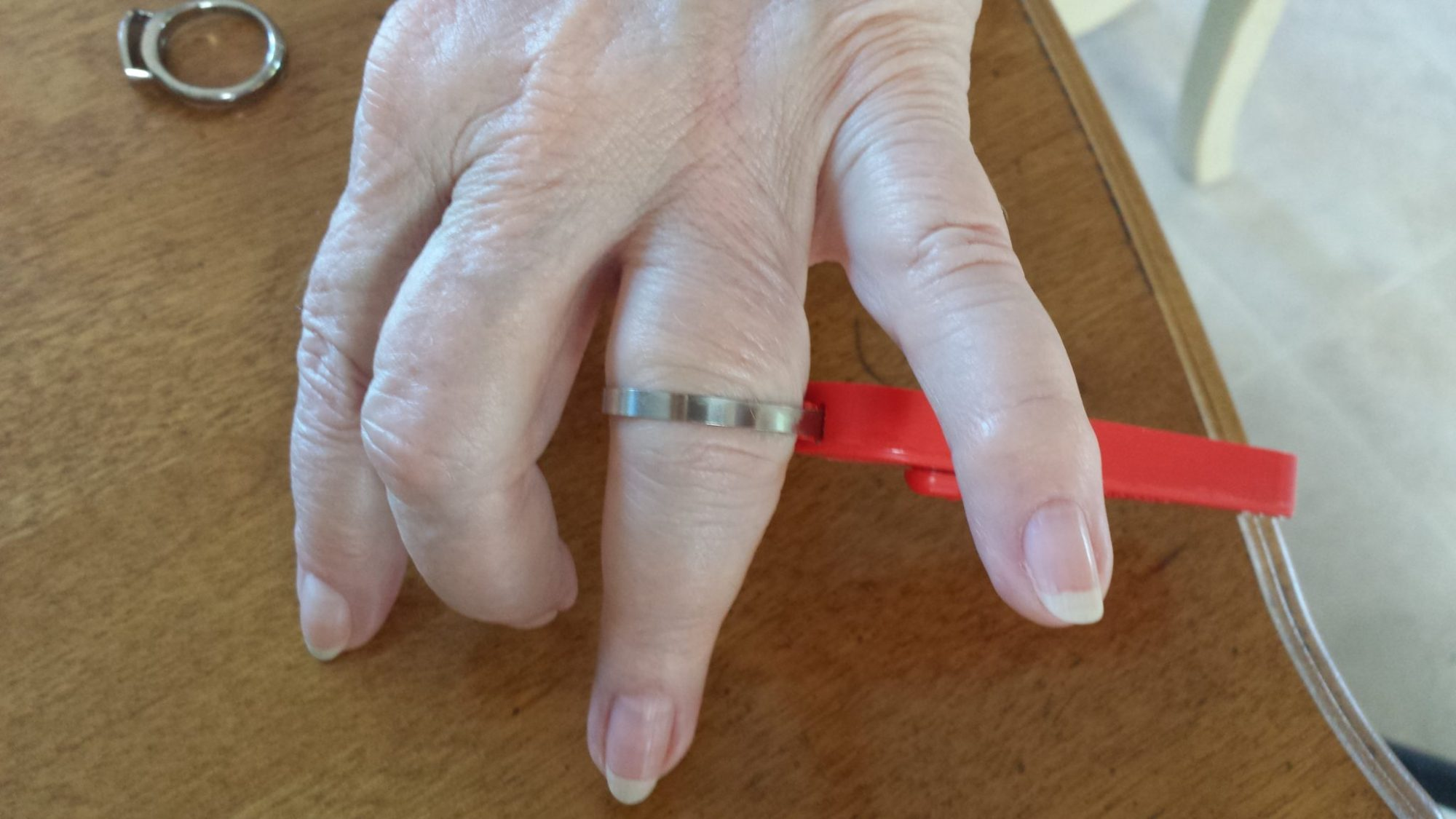 Large knuckle being measured