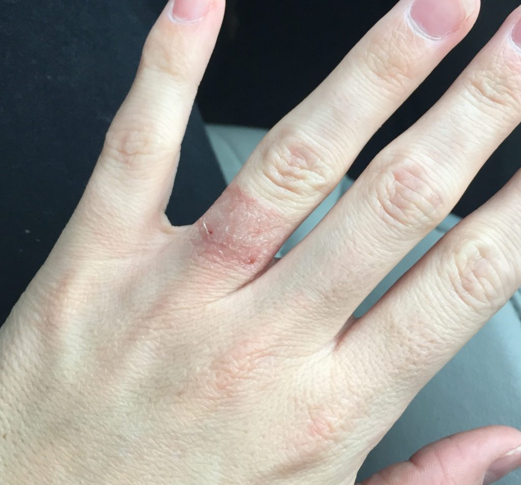 Ring finger showing allergic reaction