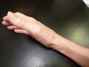 Thumb up Exposing Your Radius Bone